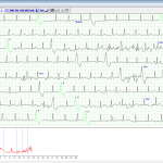 holter 1